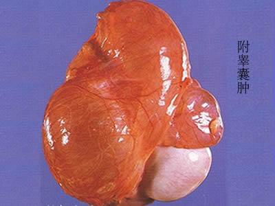 正确认识睾丸囊肿?   首先我们来了解下什么是睾丸囊肿?专